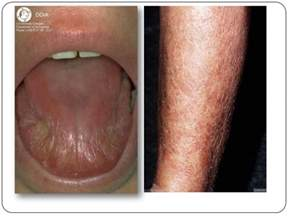 vaginal skin infections picture 17