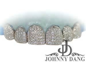 diamond teeth sale picture 3