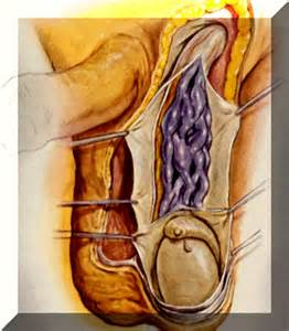 scrotal ultrasound by female technician picture 10