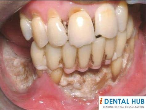 causes of teeth problems picture 2