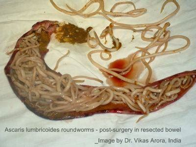 Photos of parasite in impacted colon picture 3