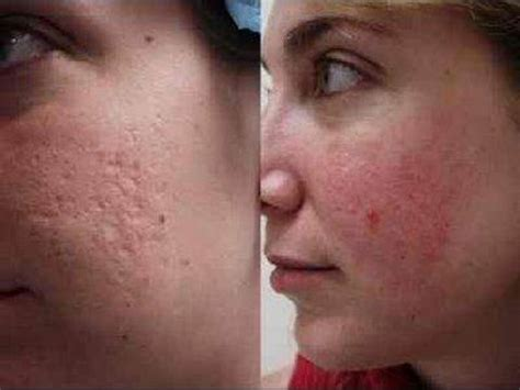 can lysine help acne scars picture 6