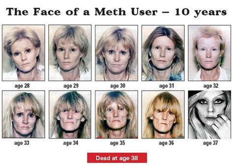 meth and drugs and physical and aging picture 5