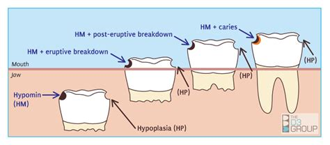 fluoride treatment for teeth picture 10