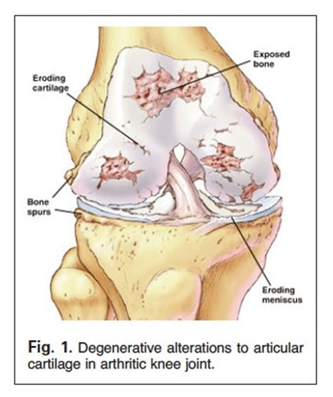 does glucosamine cause alopecia picture 15