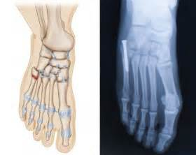5th metatarsal pain on weight bearing picture 6