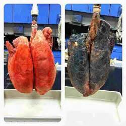 what does prostate ca what does breast cancer picture 9