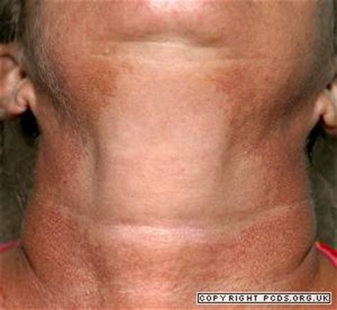 what causes acne on the arms picture 8