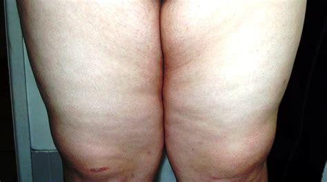 cellulite remedies picture 14
