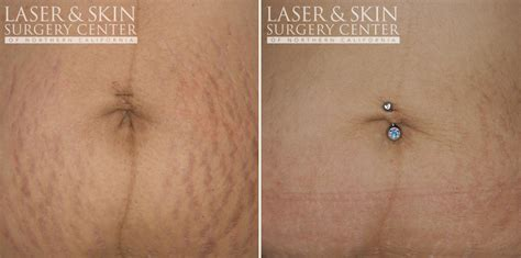 laser treatments for stretch marks picture 5