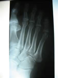 throbbing big toe joint pain picture 5
