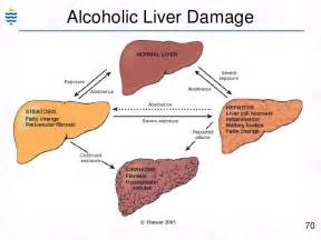 how long for alcohol hepa is c liver damage picture 7
