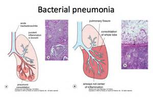 Is bacterial pneumonia catching picture 2