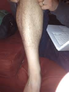 leg going to sleep picture 9