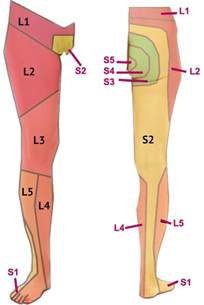 facet joint arthropathy picture 15