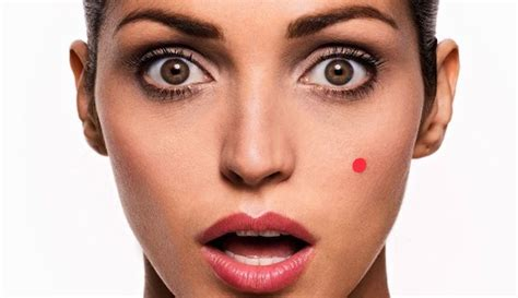 beauty tips 4acne skin nd spots by dr picture 1
