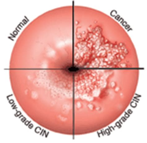 yeast infections with abnormal pap smear picture 4