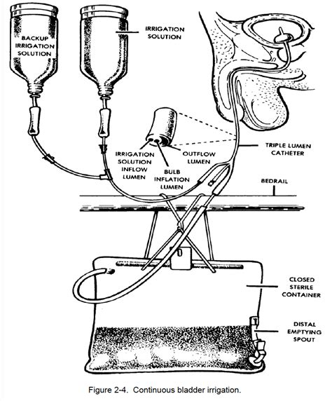 continuous bladder irrigation picture 1