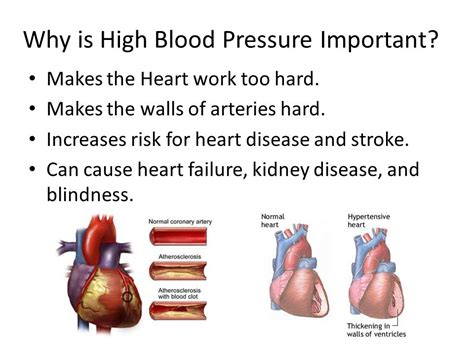 what isidered hgh blood pressure picture 15