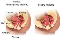 bladder bulge in male picture 3