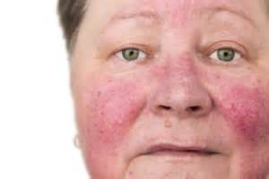 couperose skin problem picture 3