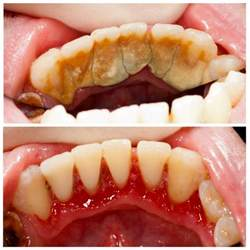 benefits of teeth cleaning picture 5