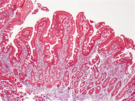 intestinal lymphoma picture 7