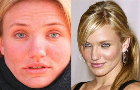 celebrities with acne picture 2