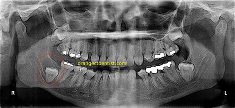 wisdom teeth picture 5