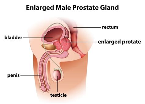 Removal of the prostate gland picture 14