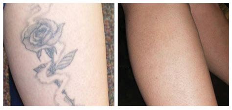 dr walker tattoo removal solution picture 15