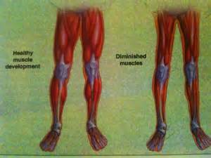 muscle burning weakness picture 6