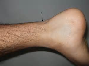 ankle joint effusion and ruptured archilles tendon picture 9