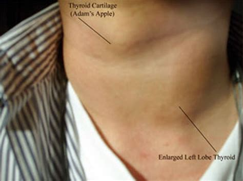 enlarged thyroid picture 1