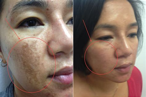 brown spots on skin picture 5