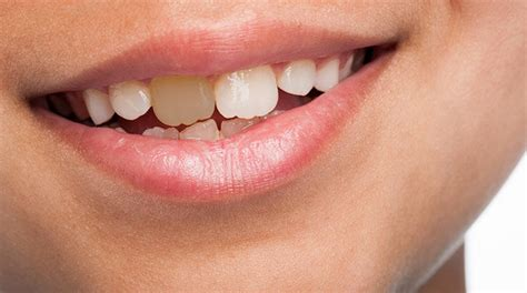 discolored teeth in children picture 10
