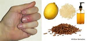 paronychia infection home remedy picture 5