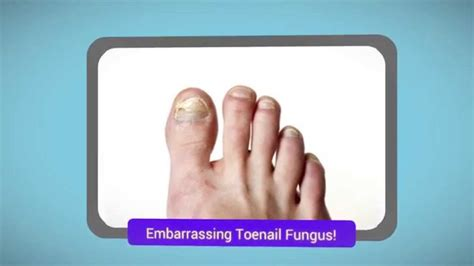 listerine and tea tree oil for toenail fungus picture 10