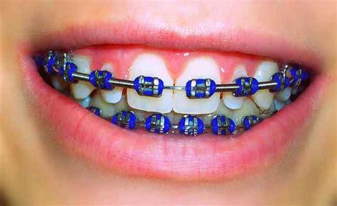 colored braces h picture 2