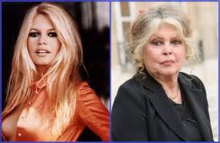 25 celebs not aging well picture 6