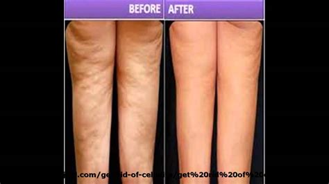 what is cellulite picture 2