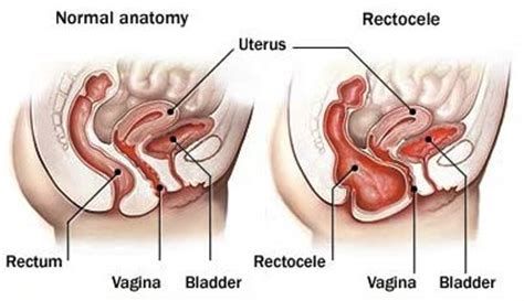 after hysterectomy can your bladder get weaker 2014 picture 13