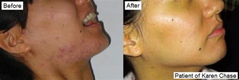 acupunture for acne picture 8