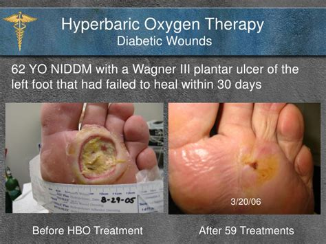 hyperbaric treatment and diabetics picture 1
