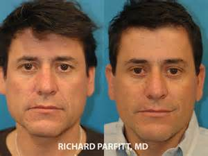 plastic surgery male enhancement picture 1