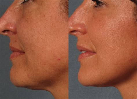 skin tightening treatment the an picture 9