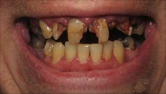 decayed teeth picture 2