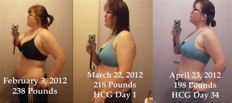 weight loss with hcg shots and picture 6