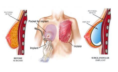 new haven breast enlargement picture 3