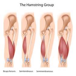 muscle tightness after back sugery picture 14